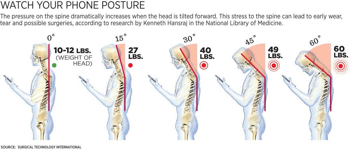 Text-Neck posture